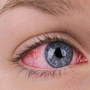 inflamed, painful looking, sensitive eye.