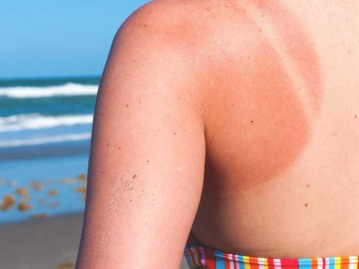the back of a woman on a beach, with her sunburnt shoulder displayed with clothing having left an outline.