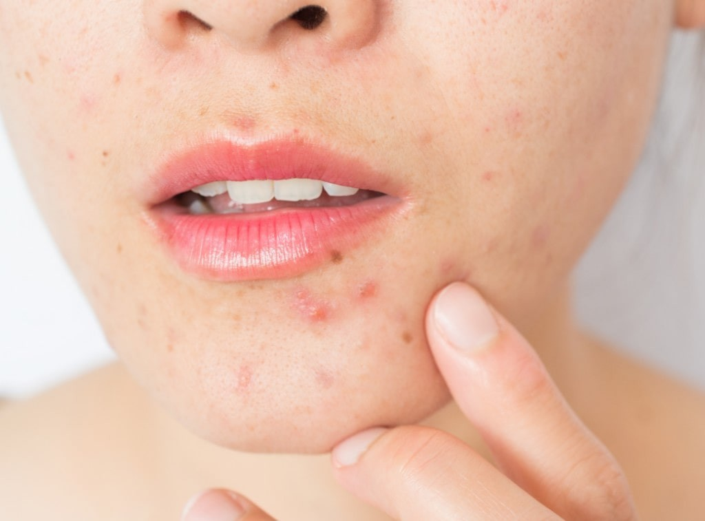 closeup of a persons chin showing acne.