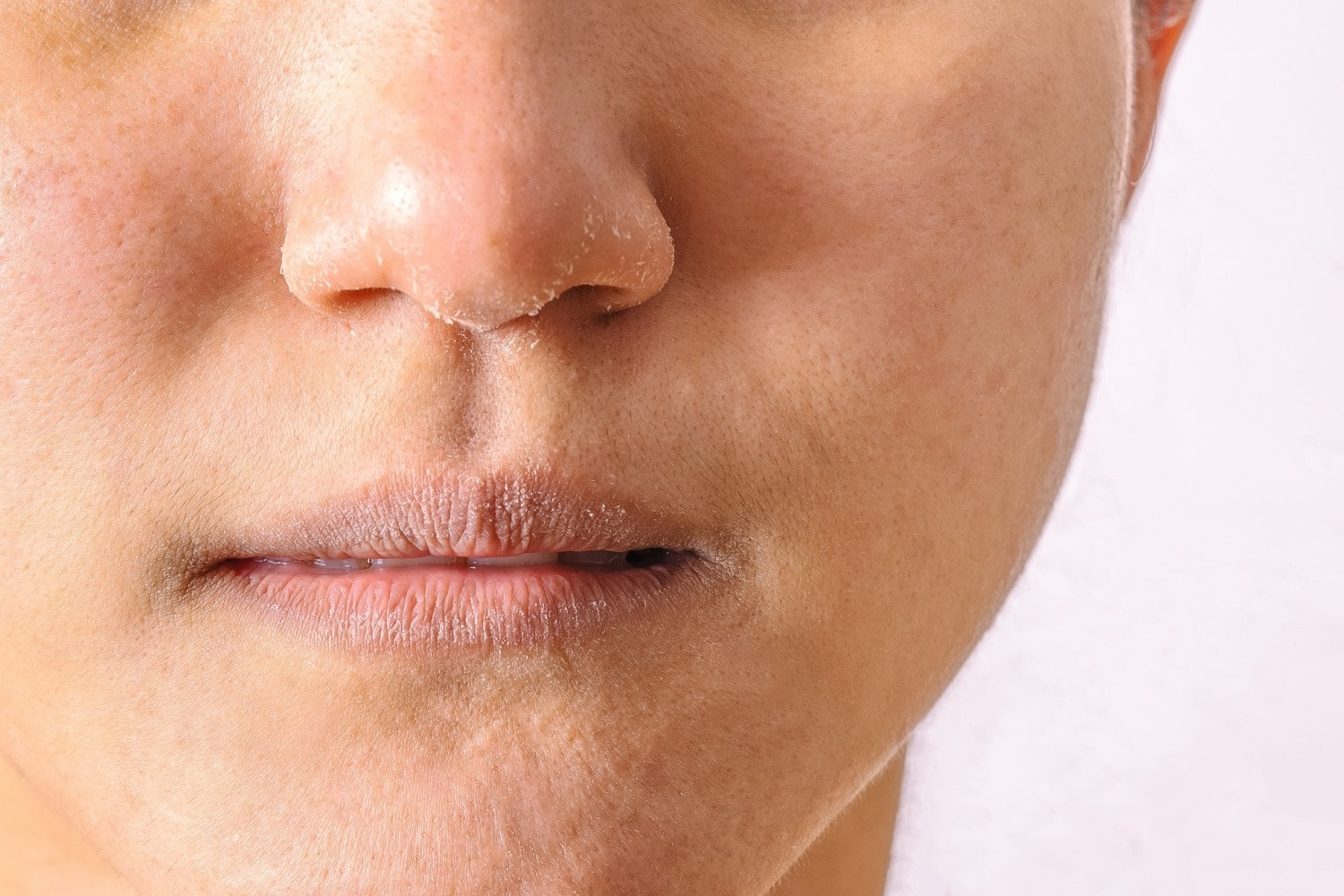 close up of a person with dry, flaky skin on their lips and nose.