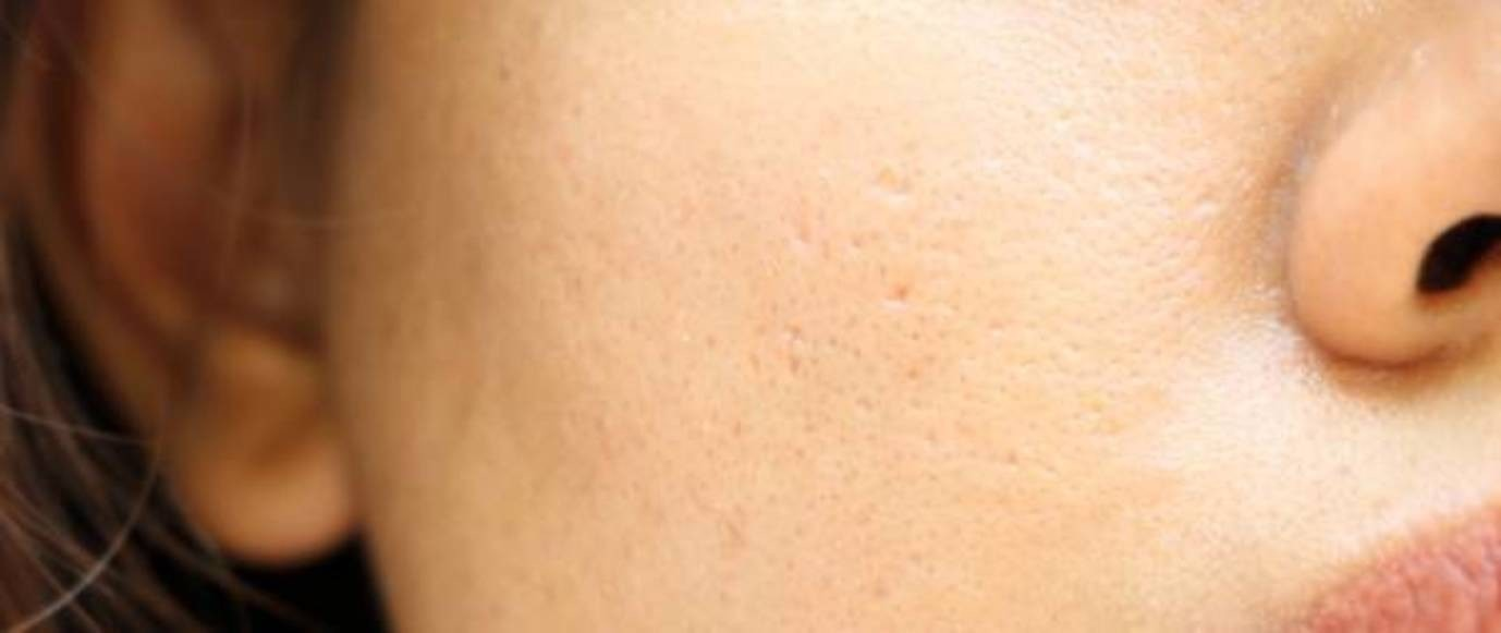 a close up of a person's face with enlarged pores on their cheek, which can reduce with products like Retinol.
