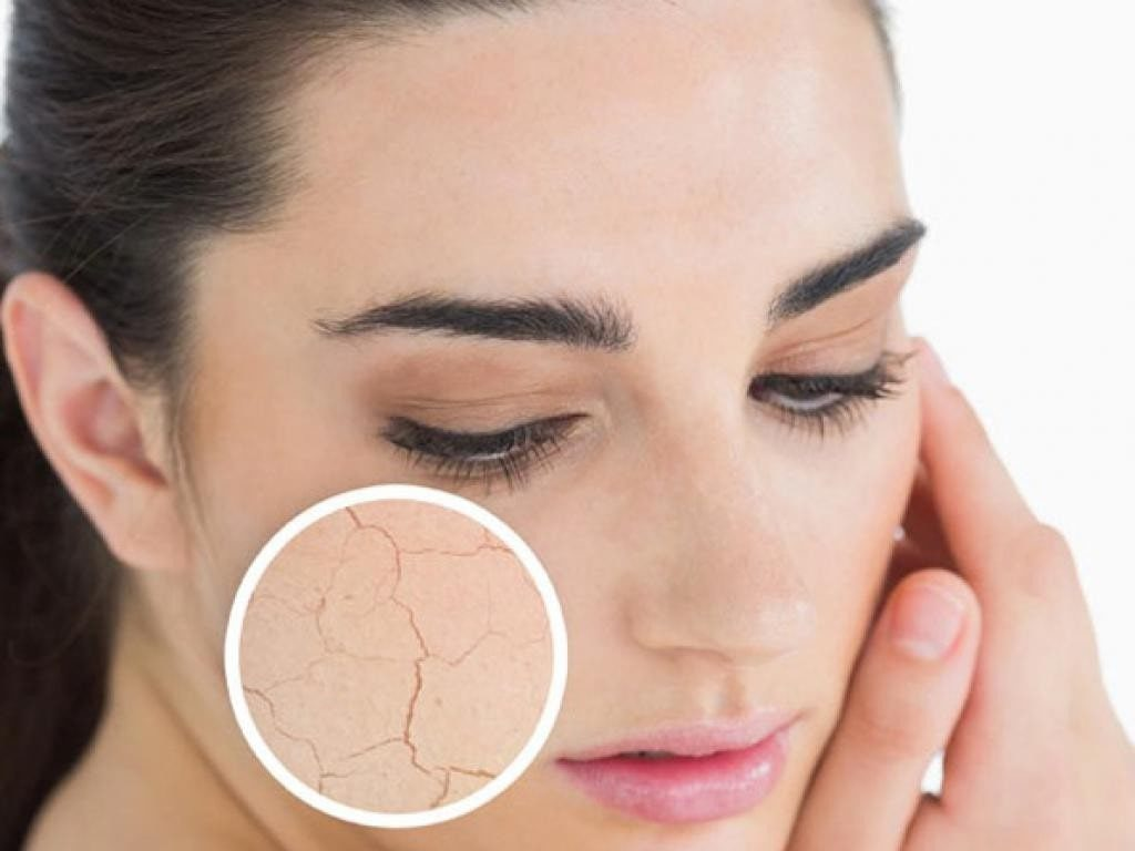 woman's face with zoomed circle of dry skin on her cheek area.