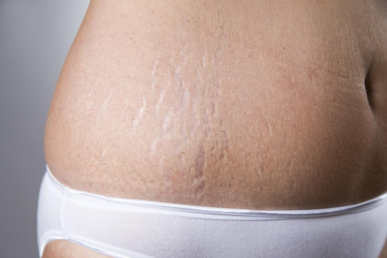 close up of stretch marks.