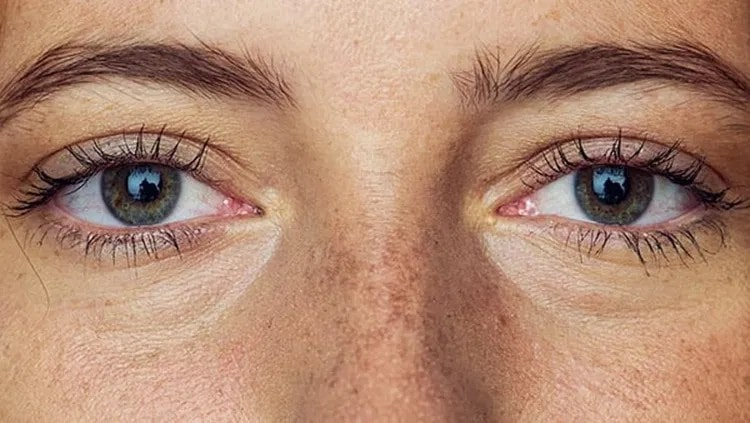 close up of a womans eyes and freckled skin.