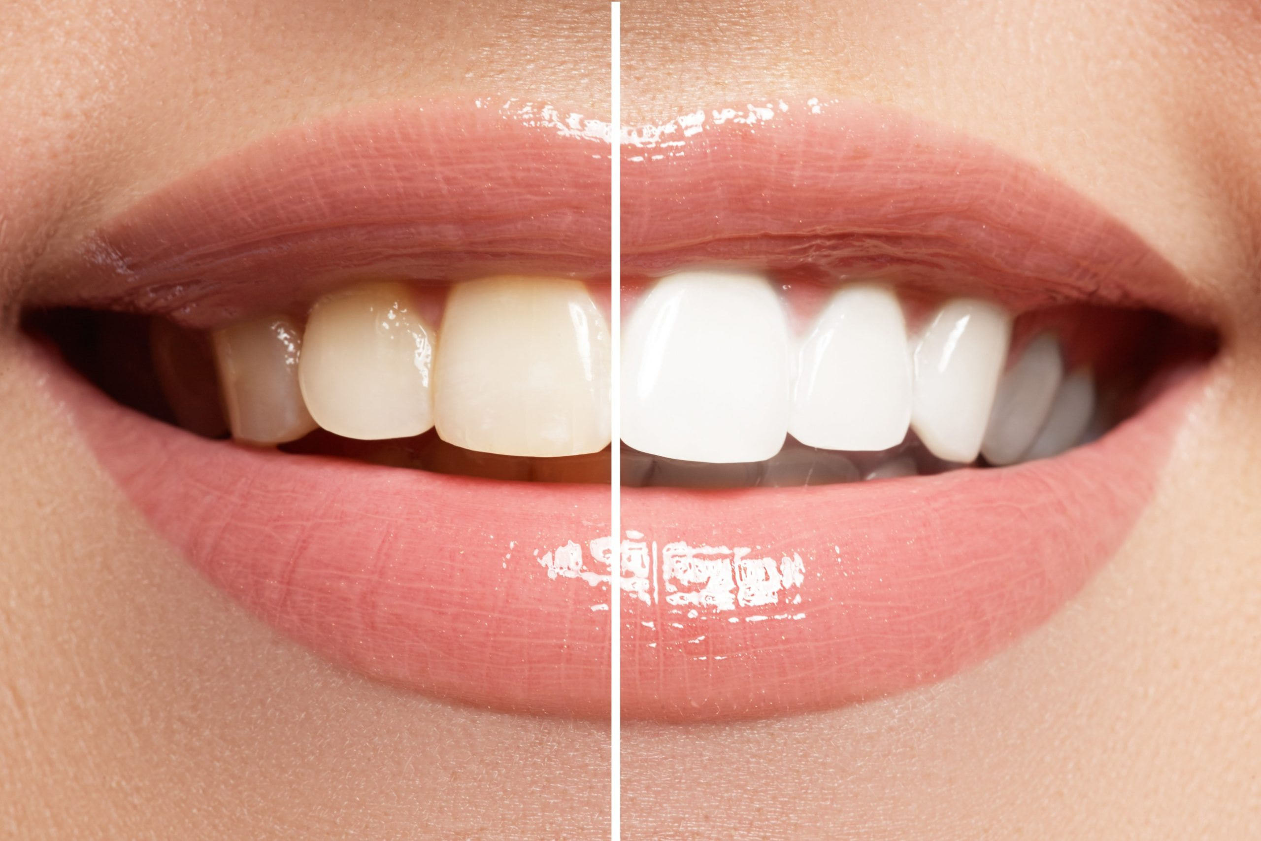 before and after teeth whitening.