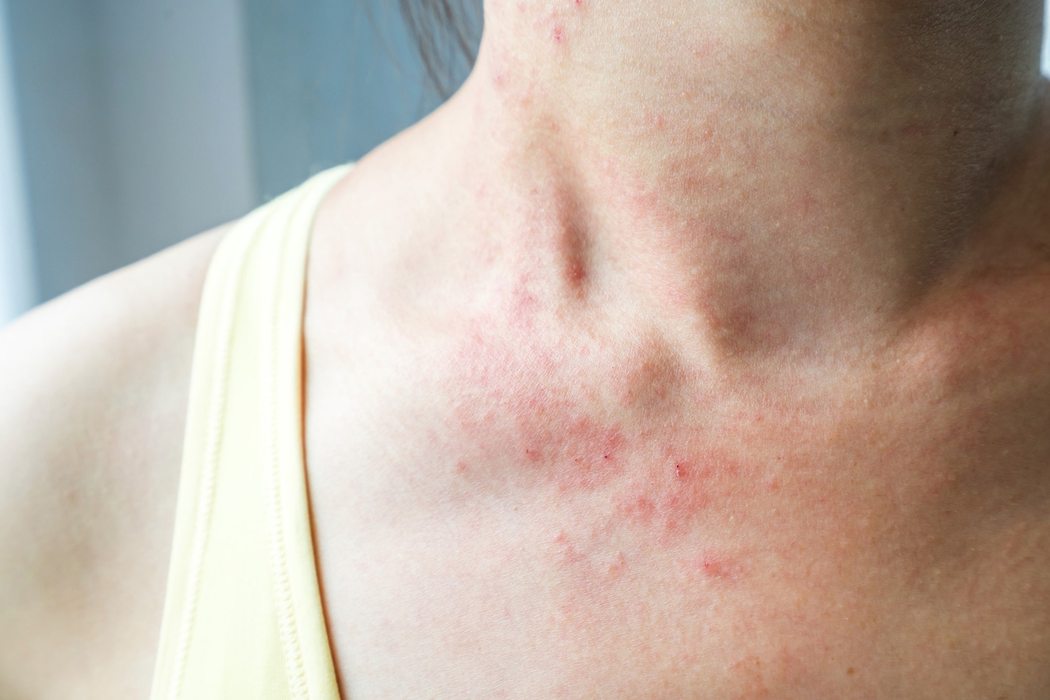 close up of a womans neck, showing an anxious/stress fuelled skin rash.