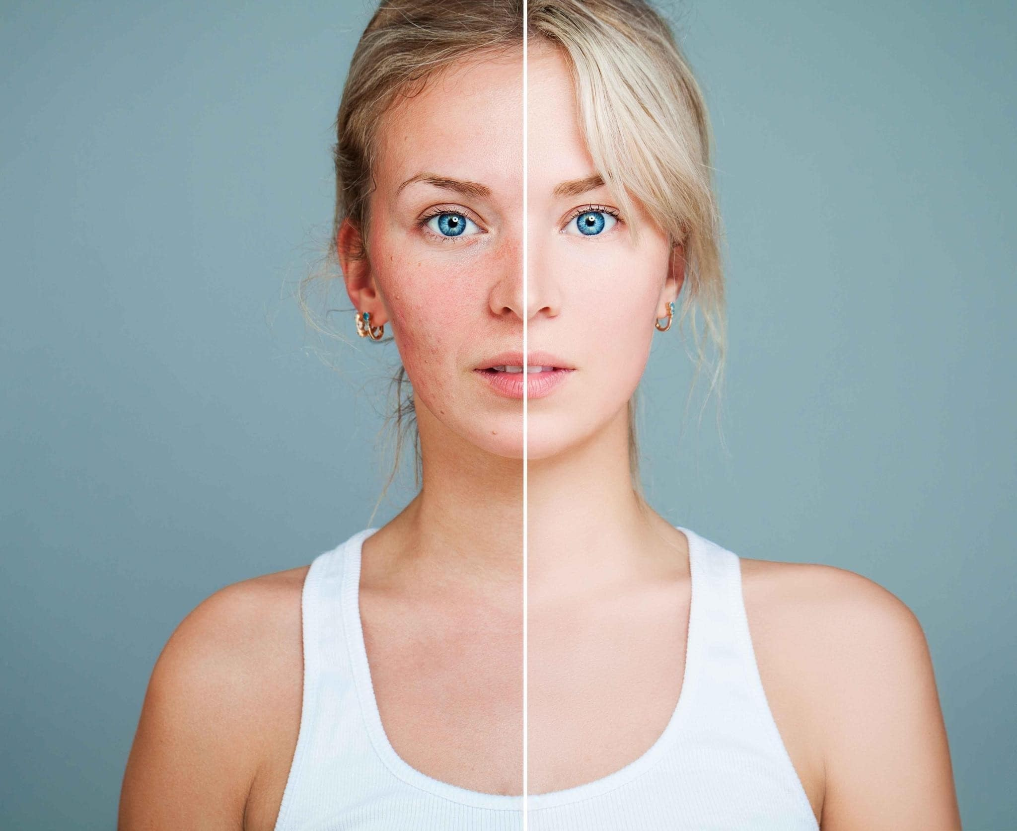 image of one woman, the image is split down the middle. The left hand side shows the woman with red, sore skin, whereas the other side appears clear.