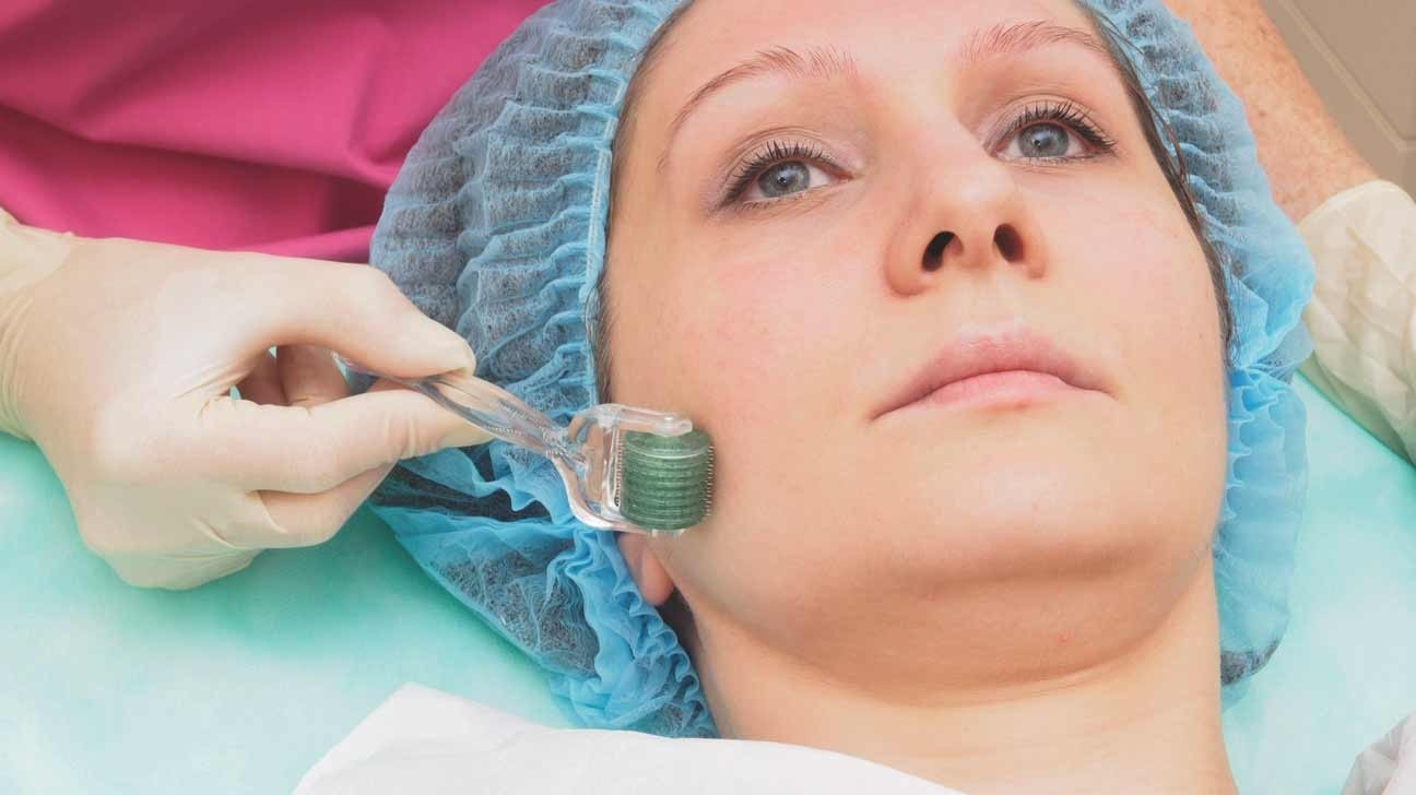 woman having micro-needling performed on her face.