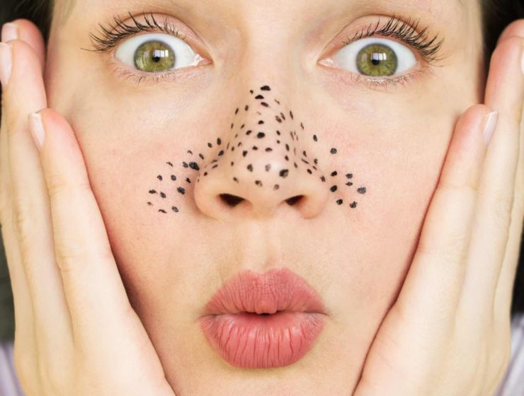 woman looking shocked, with drawn on blackheads around her nose.