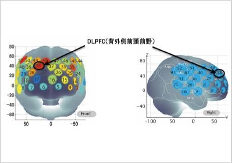 DLPFC Graph screenshot.