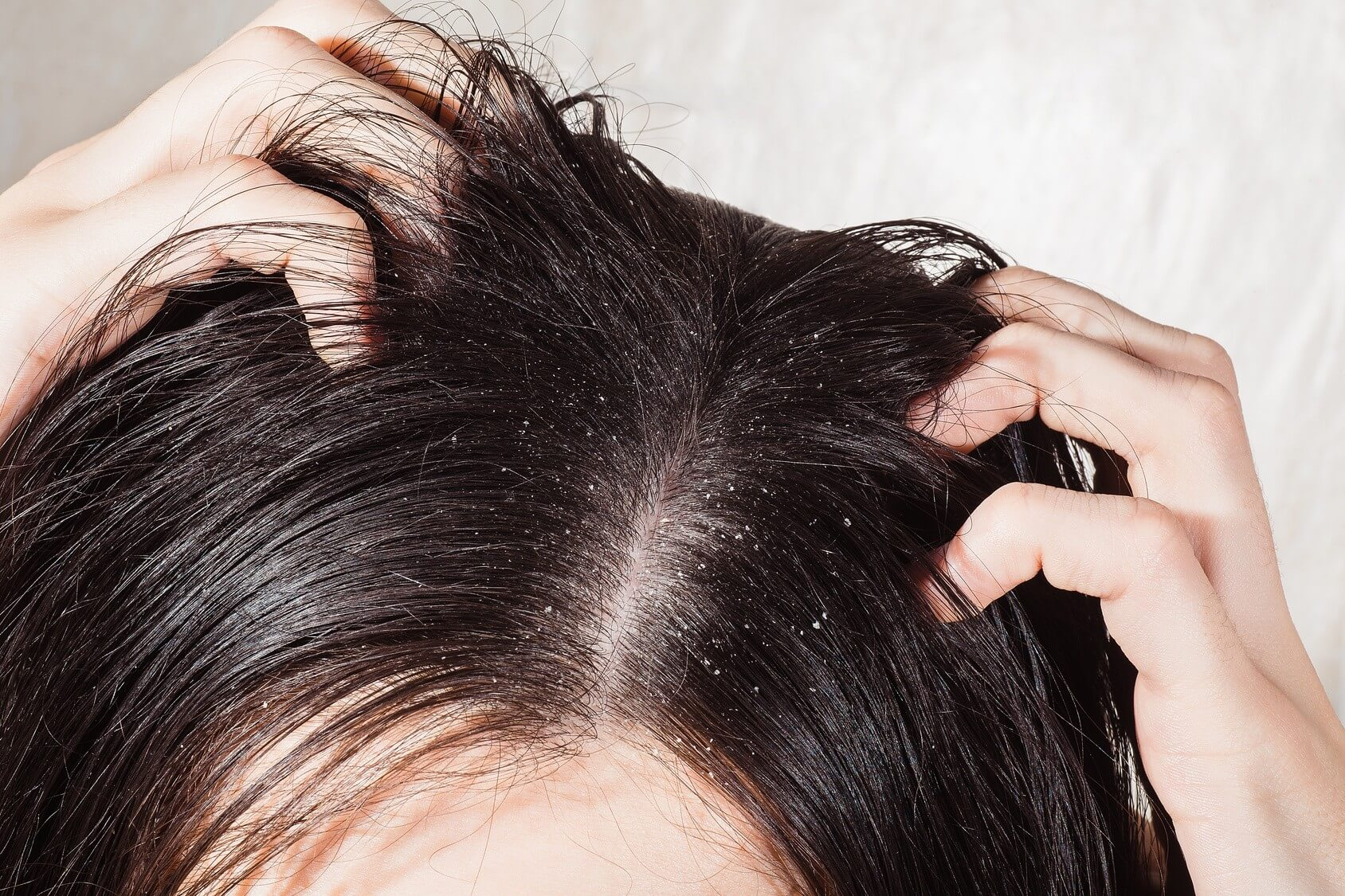 close up of a persons oily roots and dandruff.